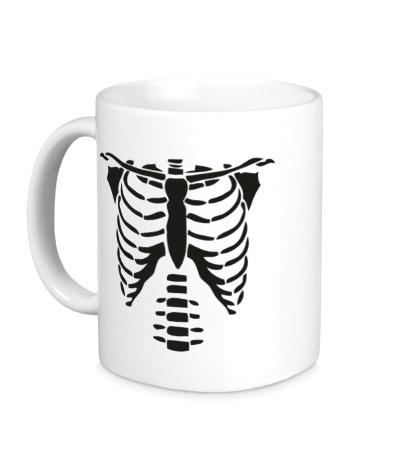Керамическая кружка Рентген