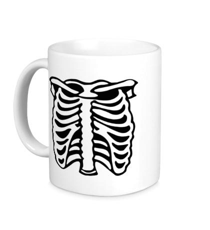 Керамическая кружка «Рентген»